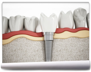 Fototapeta - Dental implant detail