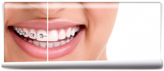 Fototapeta - Healthy smile with braces