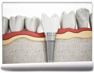 Fototapeta - Dental implant detail