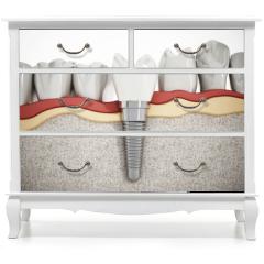 Naklejka na meble - Dental implant detail