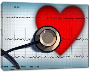 Obraz na płótnie canvas - Stethoscope and ECG over a stylized hearth. Digital illustration