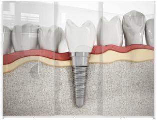 Panel szklany do szafy przesuwnej - Dental implant detail