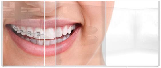 Panel szklany do szafy przesuwnej - Healthy smile with braces