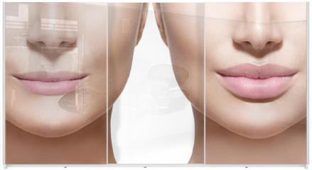 Panel szklany do szafy przesuwnej - Before and after lip filler injections. Lips closeup over white