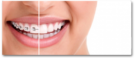 Plakat - Healthy smile with braces