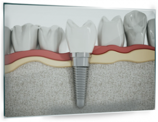 Panel szklany do kuchni - Dental implant detail