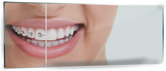 Panel szklany do kuchni - Healthy smile with braces