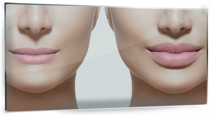Panel szklany do kuchni - Before and after lip filler injections. Lips closeup over white